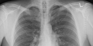 Objawy astmy oskrzelowej