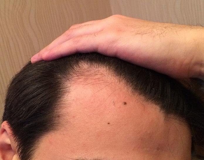 Mezoterapia igłowa na włosy z komórkami macierzystymi