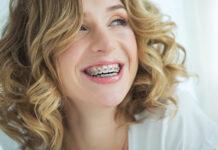 aparat ortodontyczny - czy warto nosić?
